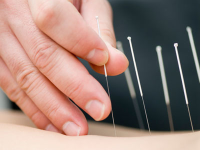 acupuncture_clinic_in_auckland